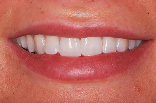 After image shows a whiter smile with no gaps after composite bonding and teeth whitening at Bupa Dental Care Congleton