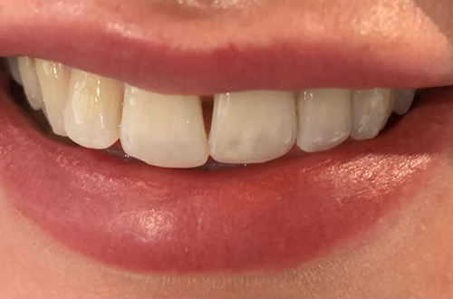Before image shows a dull smile with gaps before treatment at Bupa Dental Care Congleton.