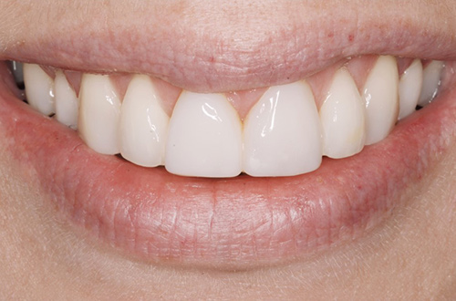After image shows a brighter, fuller smile after composite bonding treatment at Bupa Dental Care Congleton