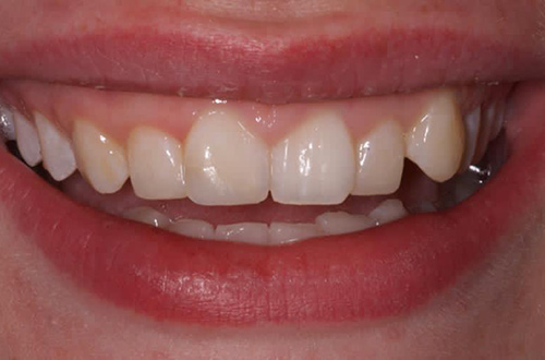 After image shows a fixed and fuller smile after composite bonding at Bupa Dental Care Congleton