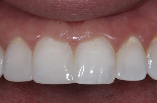 After image shows a straighter and fuller smile after composite bonding at Bupa Dental Care Congleton