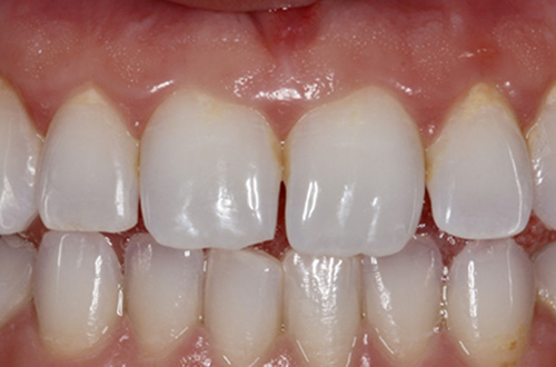 Before image shows chipped, broken teeth before composite bonding at Bupa Dental Care Congleton