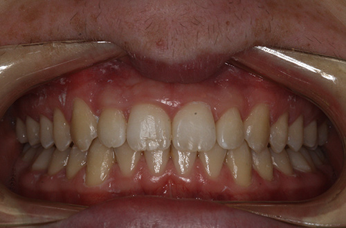 After image shows a more even smile following Invisalign Teen treatment at Bupa Dental Care Summertown.