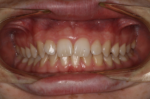 Before image shows a slightly crooked smile before treatment at Bupa Dental Care Summertown.