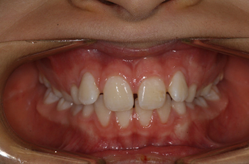 Before image shows an uneven set of teeth with gaps before treatment at Bupa Dental Care Summertown.