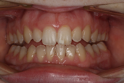 After image shows a straighter smile after Invisalign comprehensive treatment at Bupa Dental Care Summertown.