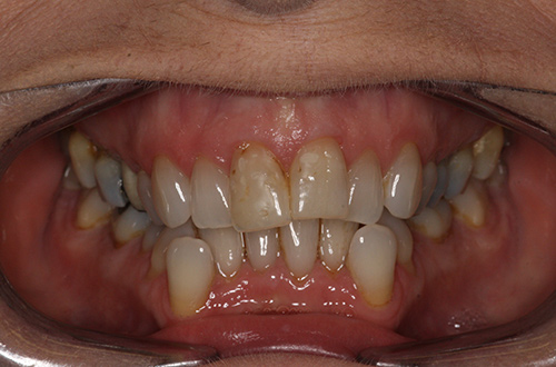 Before image shows an overcrowded smile before treatment at Bupa Dental Care Summertown.