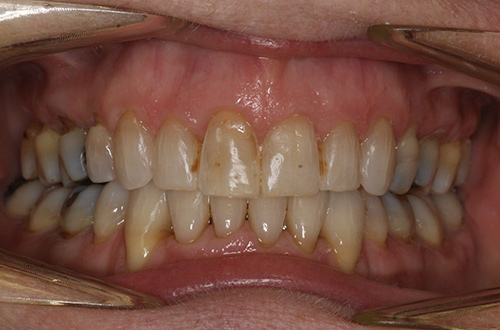 After image shows a straighter, less crowded smile following tooth extraction and Invisalign treatment at Bupa Dental Care Summertown.