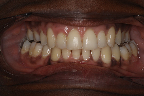 After image shows full smile using a dental implant at The Raglan Suite, Harrogate.