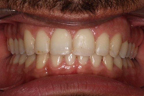 After image shows a rounded, more even smile following Invisalign treatment at Bupa Dental Care Summertown.
