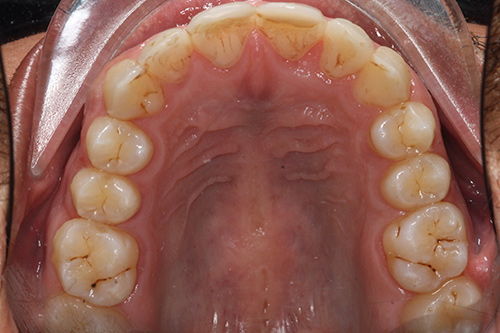 After image shows a rounded, more even set of teeth inside the mouth following Invisalign treatment at Bupa Dental Care Summertown.