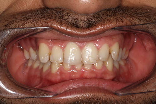 Before image shows an uneven set of teeth before treatment.