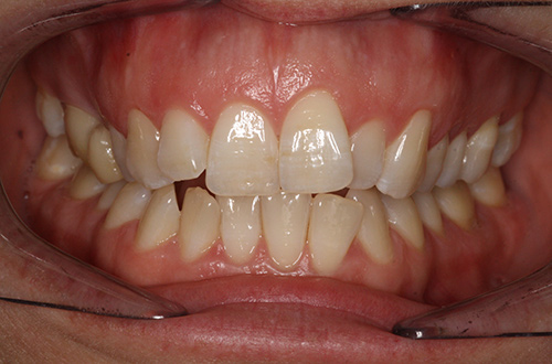 Before image shows a crooked smile prior to treatment at Bupa Dental Care Summertown.