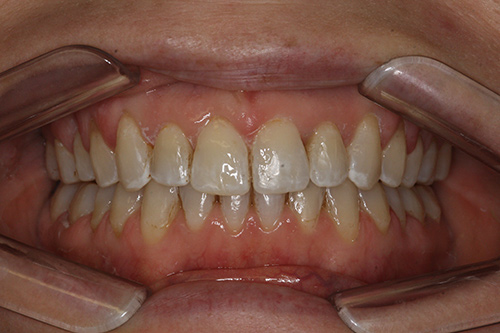 After image shows straight, less crowded smile following Invisalign treatment at Bupa Dental Care Summertown.