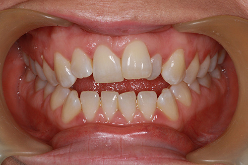 Before image shows crooked, over-crowded smile before treatment.