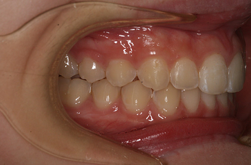 After image shows a more even smile with no overbite following Invisalign Teen treatment at Bupa Dental Care Summertown.