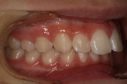 Before image shows the front teeth pushing out further than the bottom teeth before treatment at Bupa Dental Care Summertown.