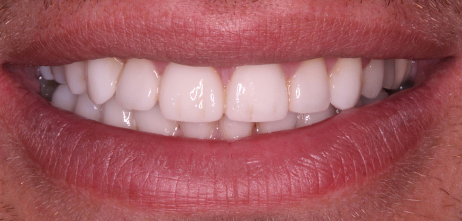 White, fully-formed smile after composite bonding