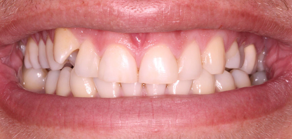 Stained, misaligned teeth before treatment