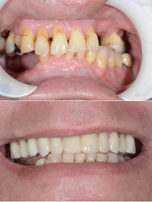 Before and after for top arch, smile in a day treatment