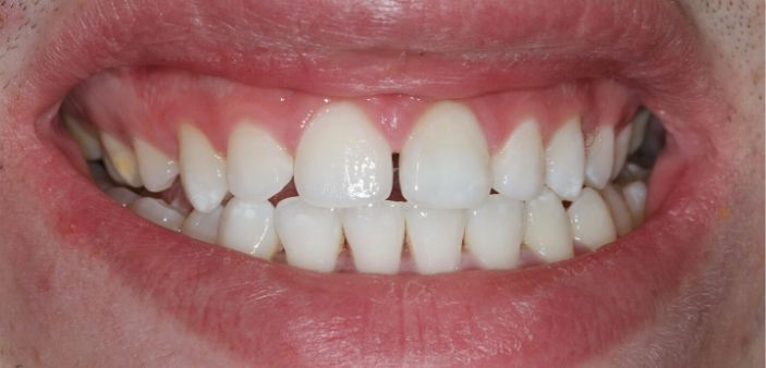 After internal teeth whitening: Bright, white smile