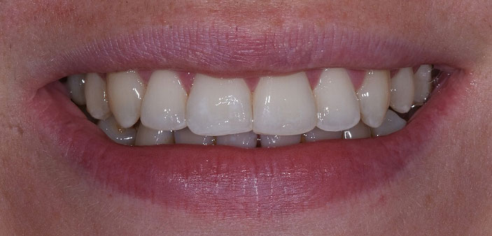 After treatment: straight, white smile following whitening and orthodontics