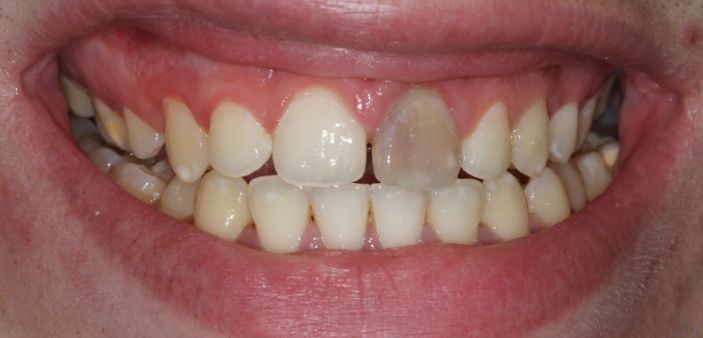 Before internal whitening: Blackened, grey front tooth after root canal