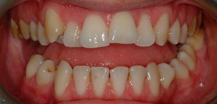 Before treatment: Stained, crooked teeth