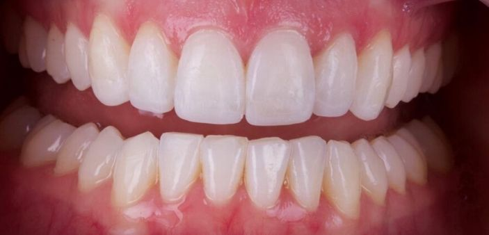 After Invisalign and whitening treatment: Full, straight, white smile