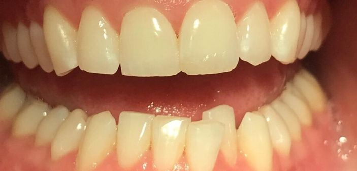 Before Invisalign and whitening treatment: crooked, stained teeth