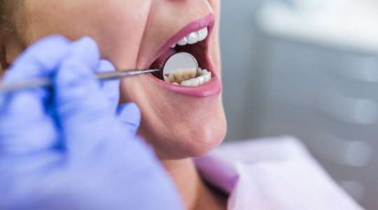 Close up of a patient's mouth as a dentist uses a small mirror to check for possible causes of tooth sensitivity