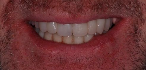 Bright, straight, full smile following smile in a day treatment at Dental Confidence, part of Bupa
