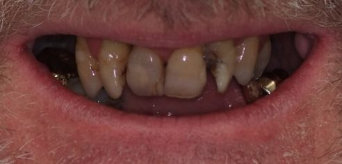 Failing, misshapen, missing teeth before smile in a day treatment at Dental Confidence, part of Bupa