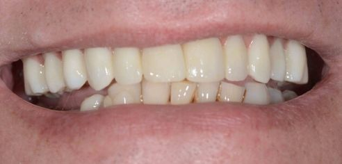 After image shows full white smile after a fixed implant bridge at The Raglan Suite, Harrogate.