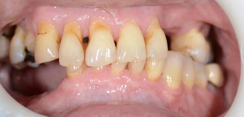broken, missing and unhealthy teeth before smile in a day treatment at Minto Dental Care