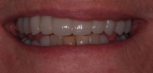 Straight, bright teeth following smile in a day treatment by Peter Sanders at Dental Confidence, part of Bupa