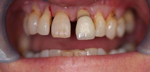 Gappy, unhealthy, protruding teeth before smile in a day treatment at Dental Confidence, part of Bupa