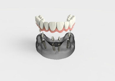 Diagram illustrating how smile in a day works. Implants fitted onto dental bridge.