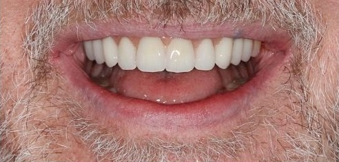 Bright, healthy smile after smile in a day full mouth implants with Dr Zybutz at Total Dental Care