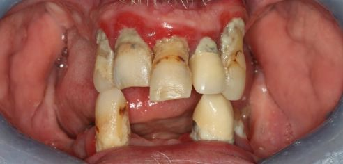 broken, missing and unhealthy teeth before smile in a day treatment at Total Dental Care