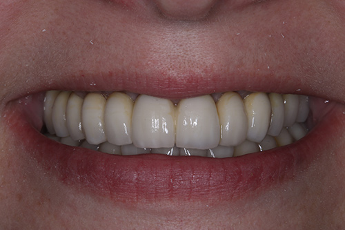 After image shows straight, white teeth after a fixed bridge at The Raglan Suite, Harrogate.