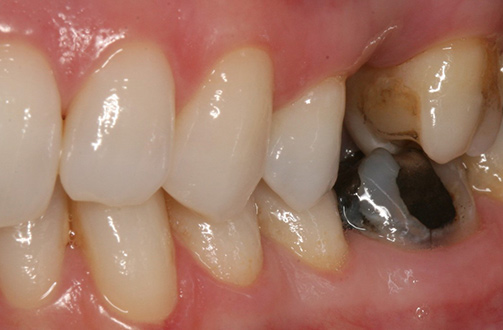 Before image shows gap in smile.