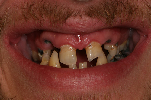 Before image shows missing, broken and stained teeth before treatment.