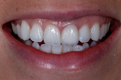 After image shows straight, bright white teeth following an implant and whitening at The Raglan Suite, Harrogate.