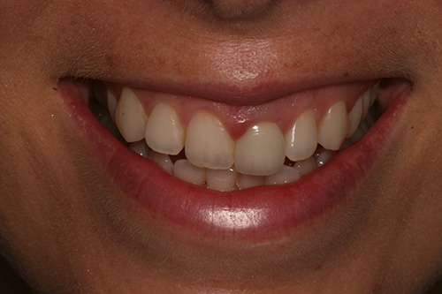 Before image shows misaligned smile before treatment.