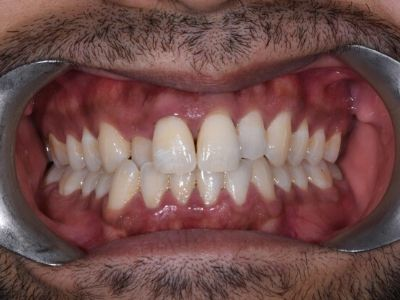crooked teeth with gaps in before treatment.