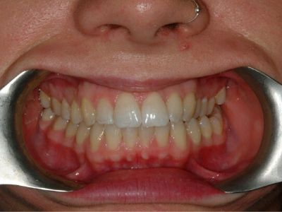 straight, white smile after Quick Straight Teeth with Dr Chris Hanford at Bupa Dental Care