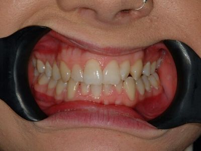 crooked, stained teeth before treatment.