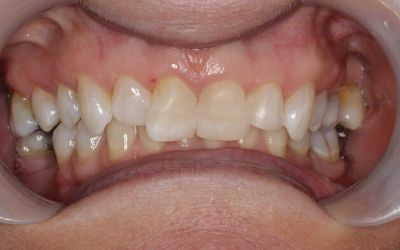 straighter, fuller smile following composite bonding treatment with Dr Chris Rutter at Bupa Dental Care