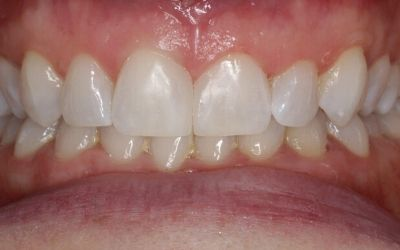 a bright full smile following composite bonding and teeth whitening treatment with Dr Chris Rutter at Bupa Dental Care.